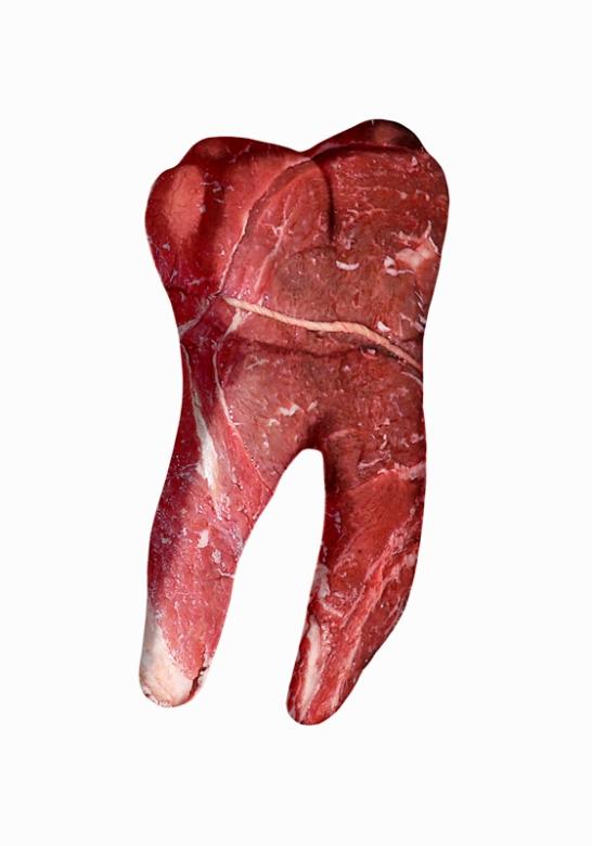 Tercer molar inferior derecho. 70 x 100 cm. Impresión digital sobre papel